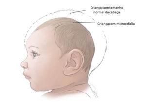 Entenda melhor a microcefalia