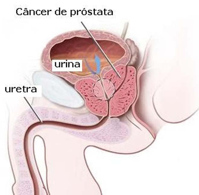 2º Próstata