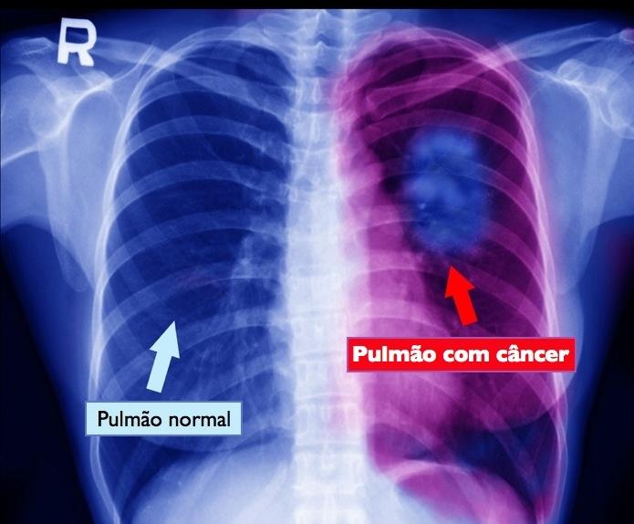 4º Pulmão