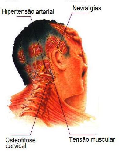 Dor de cabeça do tipo tensional