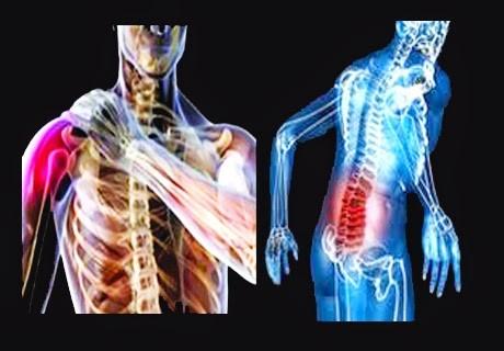 Conheça os sintomas da LER e os cuidados preventivos