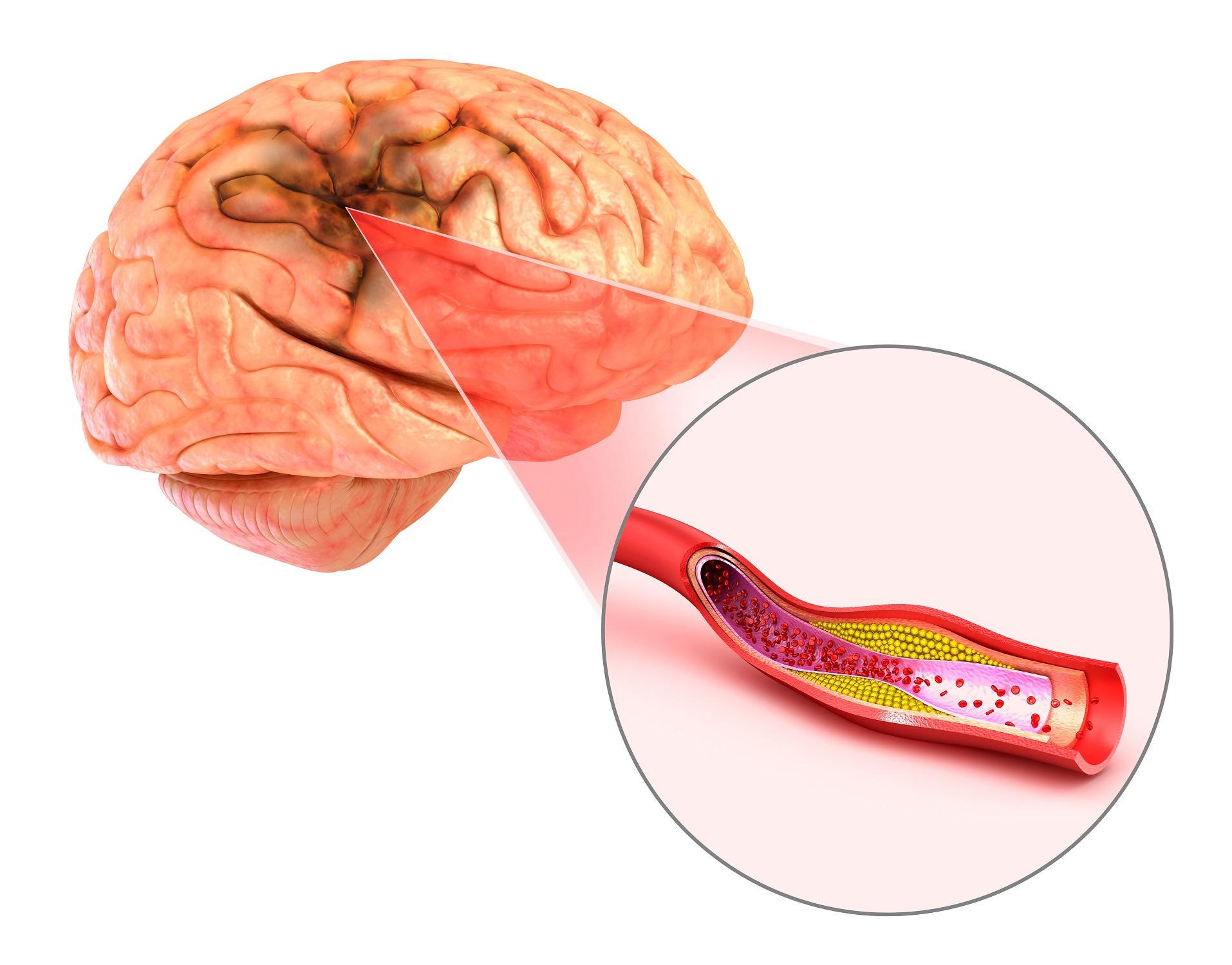O que muitas pessoas não sabem sobre o derrame cerebral