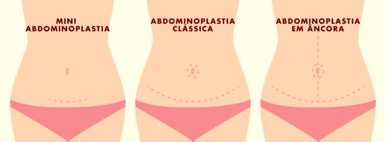 Entenda tudo sobre a abdominoplastia