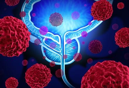 Veja os avanços no tratamento do câncer de próstata